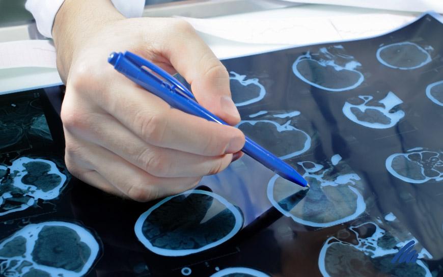 img-neurologia.jpg