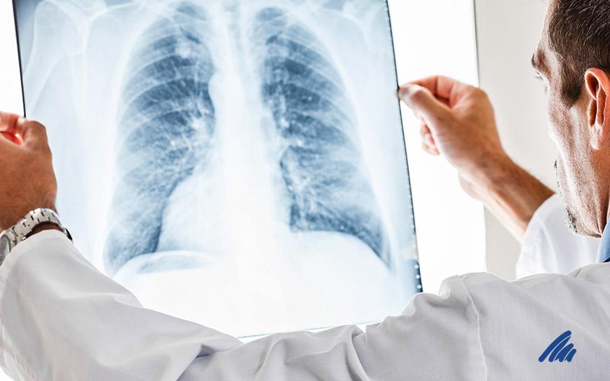 img-pneumologia.jpg
